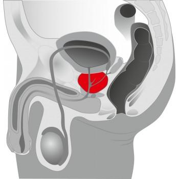 Prostate Plug black